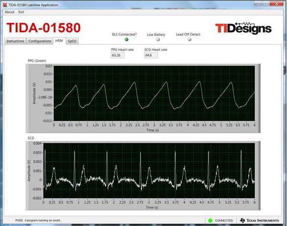 wireless patient monitor Design