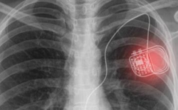 medical implant technology
